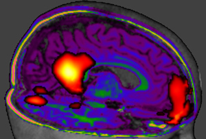 The science of imaging the brain